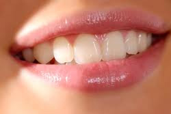 Veneers and Bonding