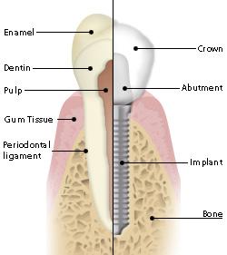si-implants