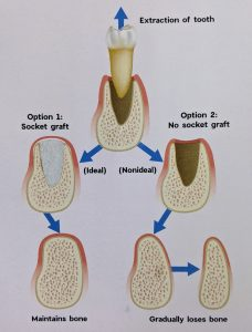 Maintaining Bone After Tooth Extraction